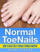 Normal ToeNails: How to Beat Ugly ToeNail Fungus Forever by Henry Fields