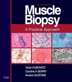 Muscle Biopsy E-Book A Practical Approach