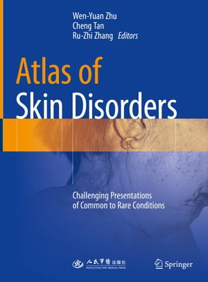 Atlas of Skin Disorders: Challenging Presentations of Common to Rare Conditions by Wen-Yuan Zhu