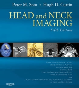 Book Head and Neck Imaging by Peter M. Som