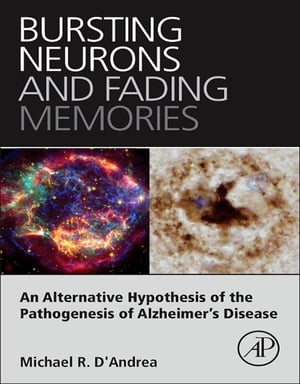 Bursting Neurons and Fading Memories An Alternative Hypothesis of the Pathogenesis of Alzheimer?s Disease