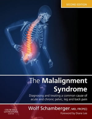 The Malalignment Syndrome Implications for Medicine and Sport