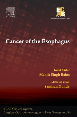 Cancer of the Esophagus - ECAB