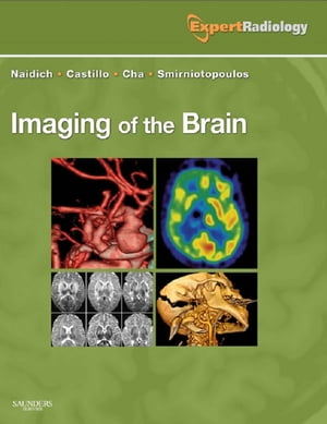 Imaging of the Brain Expert Radiology Series