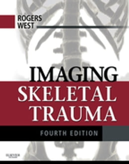 Book Imaging Skeletal Trauma E-Book by Lee F. Rogers, MD
