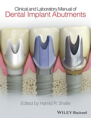 Clinical and Laboratory Manual of Dental Implant Abutments by Hamid R. Shafie
