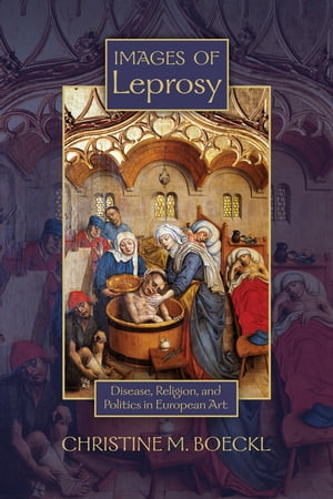 Images of Leprosy Disease,  Religion,  and Politics in European Art