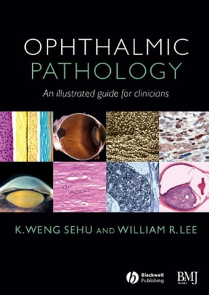 Ophthalmic Pathology An Illustrated Guide for Clinicians