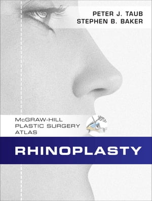 Rhinoplasty McGraw-Hill Plastic Surgery Atlas