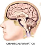 Chiari Malformation: Causes, Symptoms and Treatments by Angie Gennaro