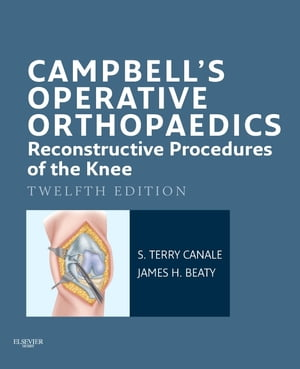 Campbell's Operative Orthopaedics: Reconstructive Procedures of the Knee