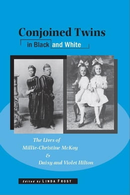 Book Conjoined Twins in Black and White: The Lives of Millie-Christine McKoy and Daisy and Violet Hilton by Frost, Linda
