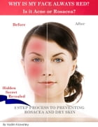 Why is my face always red? Is it Acne or Rosacea?: 3 step process to preventing Rosacea and Dry Skin by Vadim Kravetsky