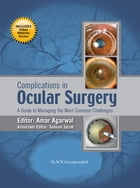 Complications in Ocular Surgery: A Guide to Managing the Most Common Challenges by Amar Agarwal