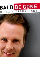 BALD BE GONE - My Hair Transplant by mark prayon