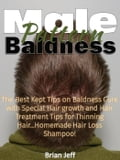 Male Pattern Baldness: The Best Kept Tips on Baldness Cure with Special Hair growth and Hair Treatment Tips for Thinning Hair. Homemade Hair Loss Shampoo! 2c55a6d7-e4b8-48fd-9bc2-c6fb1cf5a4a3