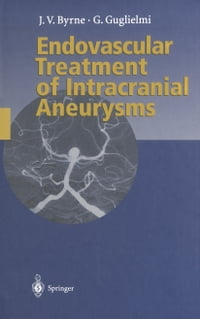 Endovascular Treatment of Intracranial Aneurysms