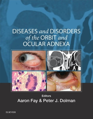 Diseases and Disorders of the Orbit and Ocular Adnexa Expert Consult