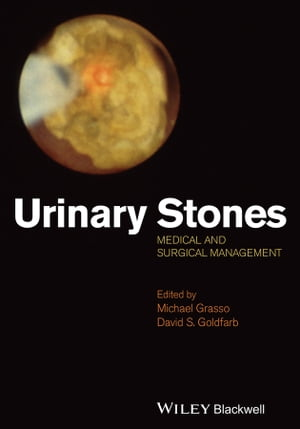 Urinary Stones Medical and Surgical Management