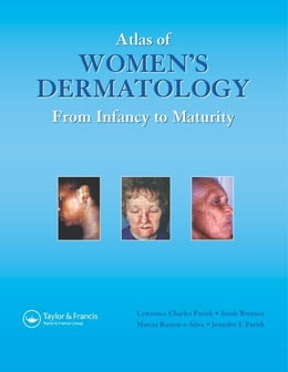 Book Atlas of Women's Dermatology: From Infancy to Maturity by Parish, MD, Lawrence Charles