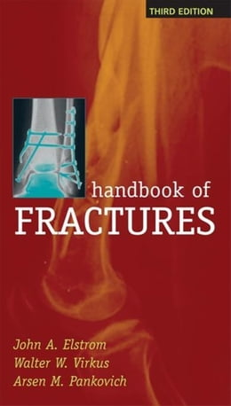 Book Handbook of Fractures, Third Edition by Elstrom, John
