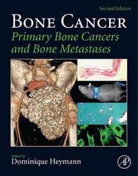 Bone Cancer: Primary Bone Cancers and Bone Metastases