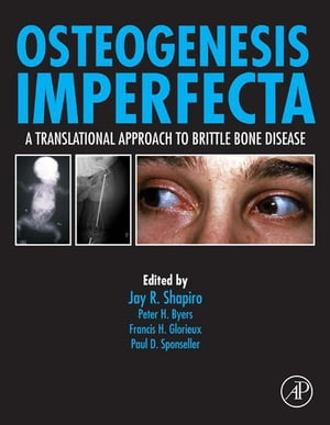 Osteogenesis Imperfecta A Translational Approach to Brittle Bone Disease