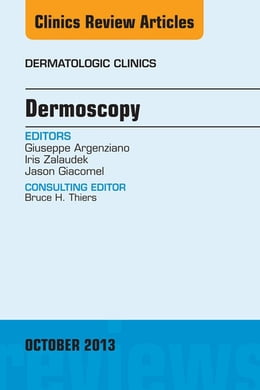 Book Dermoscopy, an Issue of Dermatologic Clinics, E-Book by Giuseppe Argenziano, MD