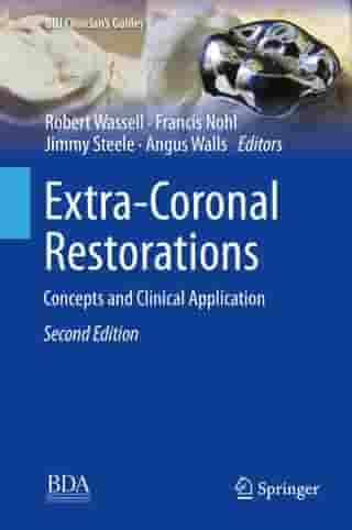 Extra-Coronal Restorations: Concepts and Clinical Application