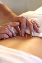 Acupuncture For Beginners by Cheryl Davidson