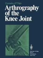 Arthrography of the Knee Joint by J.R. Blickman