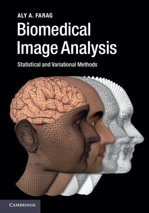 Biomedical Image Analysis Statistical and Variational Methods
