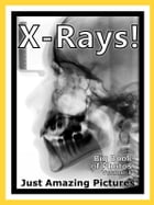 Just X-Ray Photos! Big Book of Photographs & Pictures of X-Rays, Medical Xray, Hospital Xrays, Vol. 1 by Big Book of Photos