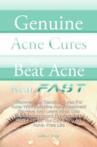 Genuine Acne Cures To Beat Acne Real Fast: Discover The Genuine Cures For Acne With Definitive Acne Treatment Reviews And Learn What Skin Exper by Linda J. Dixon