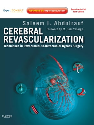 Cerebral Revascularization Techniques in Extracranial-to-Intracranial Bypass Surgery: Expert Consult