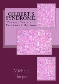 Gilbert's Syndrome: Causes, Tests and Treatment Options