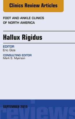 Book Hallux Rigidus, An Issue of Foot and Ankle Clinics of North America, by Eric Giza