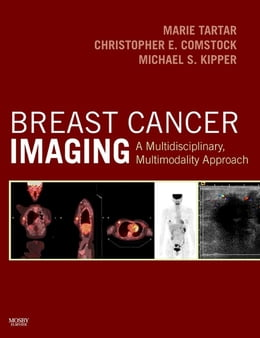 Book Breast Cancer Imaging: A Multidisciplinary, Multimodality Approach by Marie Tartar