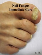 Nail Fungus Immediate Cure by V.T.