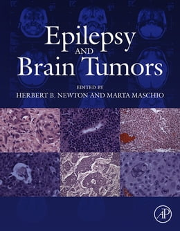 Book Epilepsy and Brain Tumors by Marta Maschio