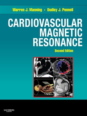 Cardiovascular Magnetic Resonance E-Book