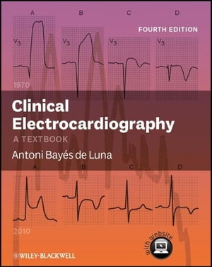 Clinical Electrocardiography A Textbook