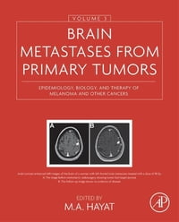 Brain Metastases from Primary Tumors, Volume 3: Epidemiology, Biology, and Therapy of Melanoma and…