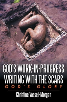God's Work-in-Progress Writing with the Scars: God's Glory