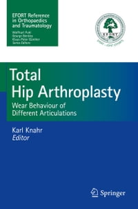Total Hip Arthroplasty: Wear Behaviour of Different Articulations