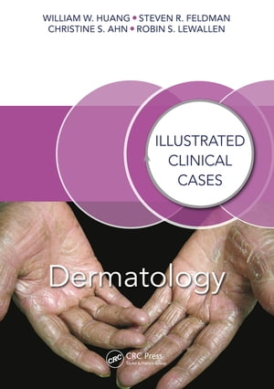 Dermatology Illustrated Clinical Cases