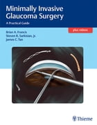 Minimally Invasive Glaucoma Surgery: A Practical Guide by Brian Francis