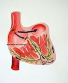 Bundle Branch Block: Causes, Symptoms and Treatments by Lamont Brashear