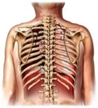 Broken Ribs: Causes, Symptoms and Treatments by Angelyn Menasco