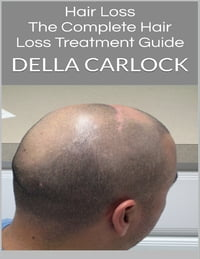 Hair Loss: The Complete Hair Loss Treatment Guide